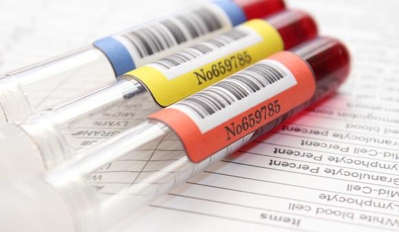 血液を採取して様々な情報を調べる血液検査