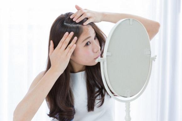 女性のための薄毛治療も実施されている